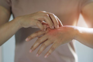 Man with a hand rash