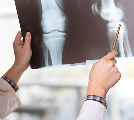 Orthopedic Trauma - Orthopedic Fractures - Meli Orthopedic Centers of Excellence - orthopedic care - orthopedic doctors ft Lauderdale - orthopedic doctors margate fl - orthopedic surgeon near me