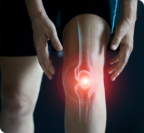 Knee Replacement Surgery Ft. Lauderdale, FL - Paul Meli Orthopedics - Knee Replacement  near me - knee surgery - knee pain - orthopedic surgeon near me - Paul Meli Orthopedic Surgeon - Paul Meli Orthopedic Surgery