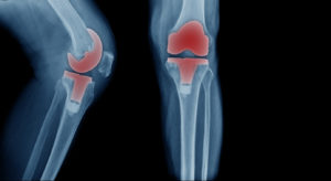 X-ray image, total knee artroplasty in blue