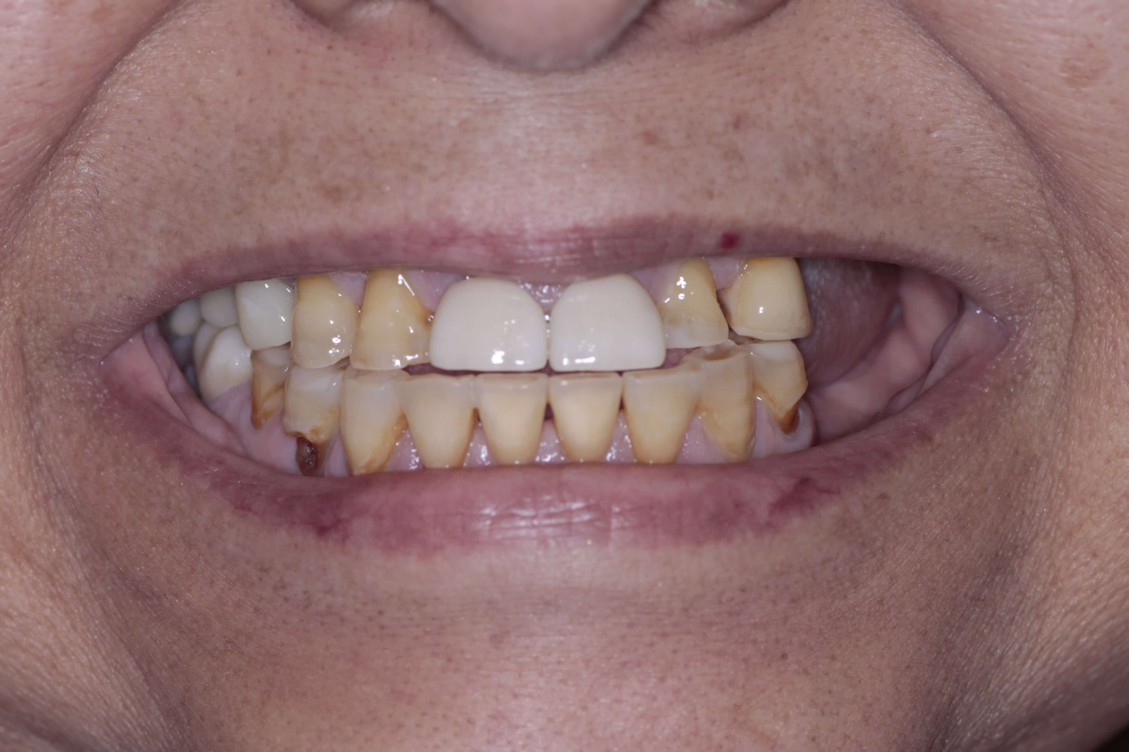 Unattractive and missing teeth