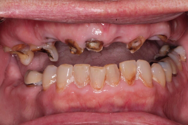Failed upper teeth