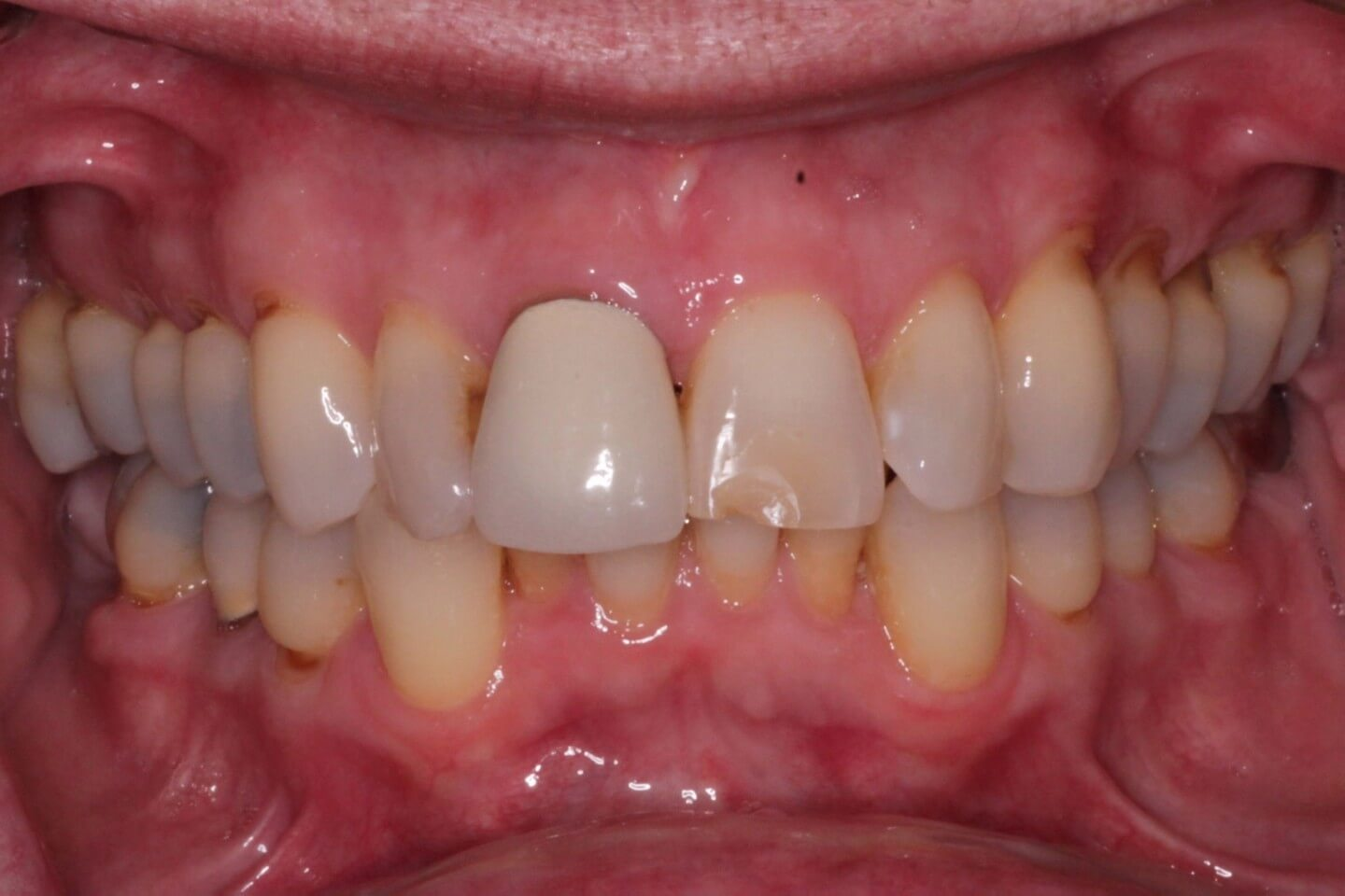 Mismatched crown on front tooth and chipped front tooth