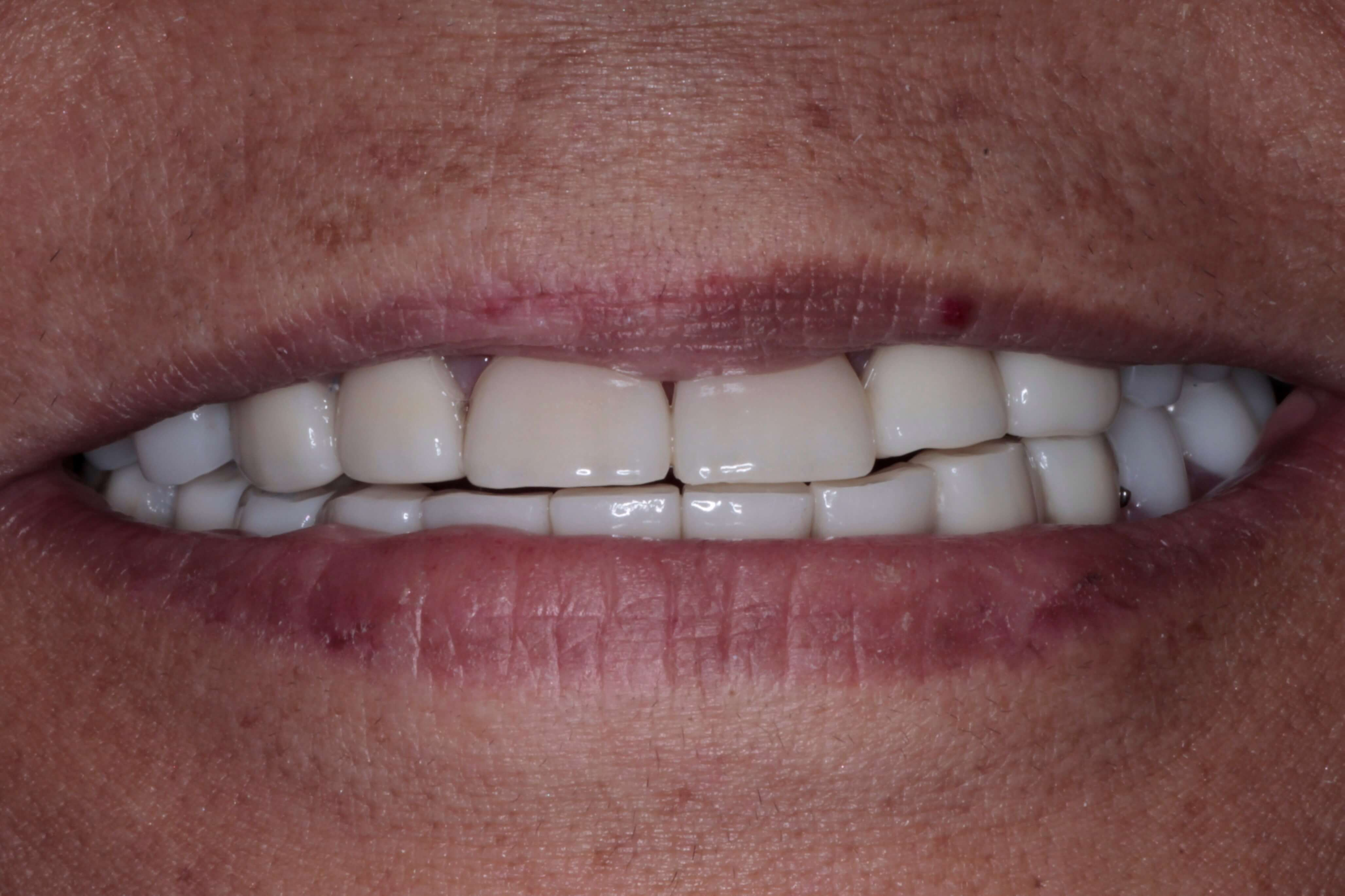 New crowns and upper and lower partial dentures