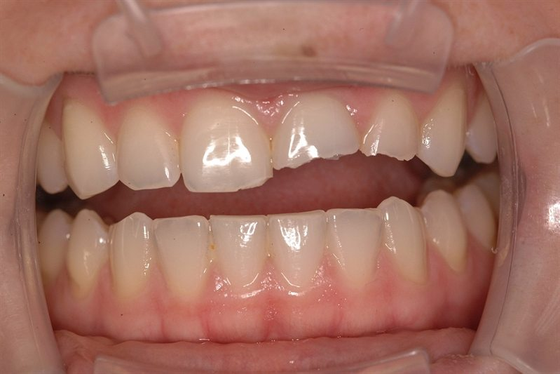 Broken front teeth from trauma