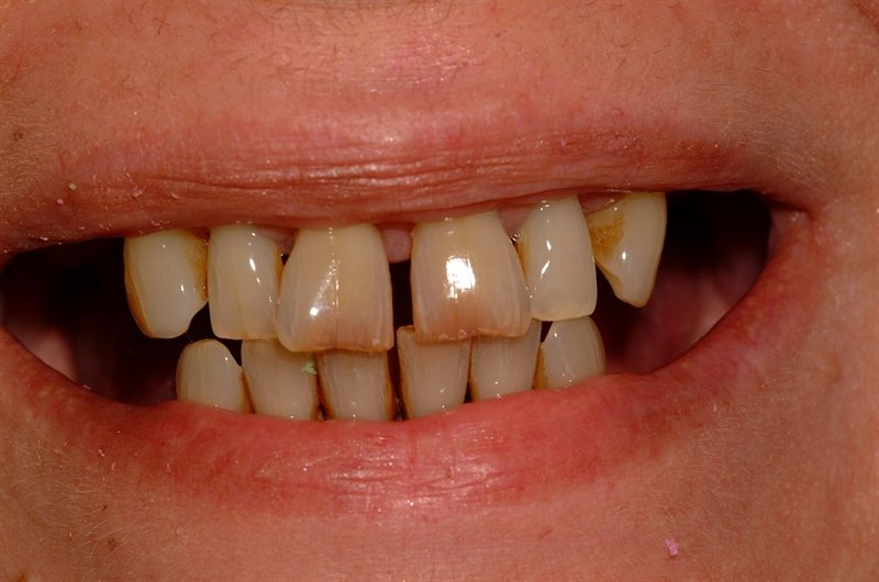 Failing upper and lower teeth