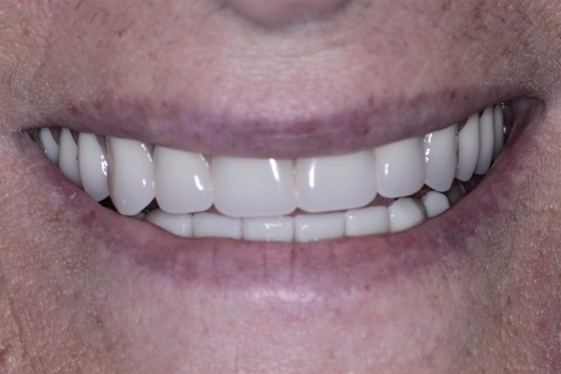 New upper implant bridge (All-on-4) and lower crowns