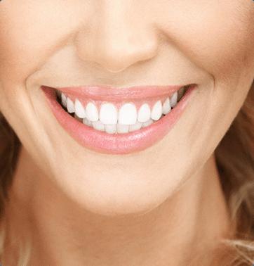 Teeth Whitening - Veneers - Cosmetic Dental - Faber Dental Arts