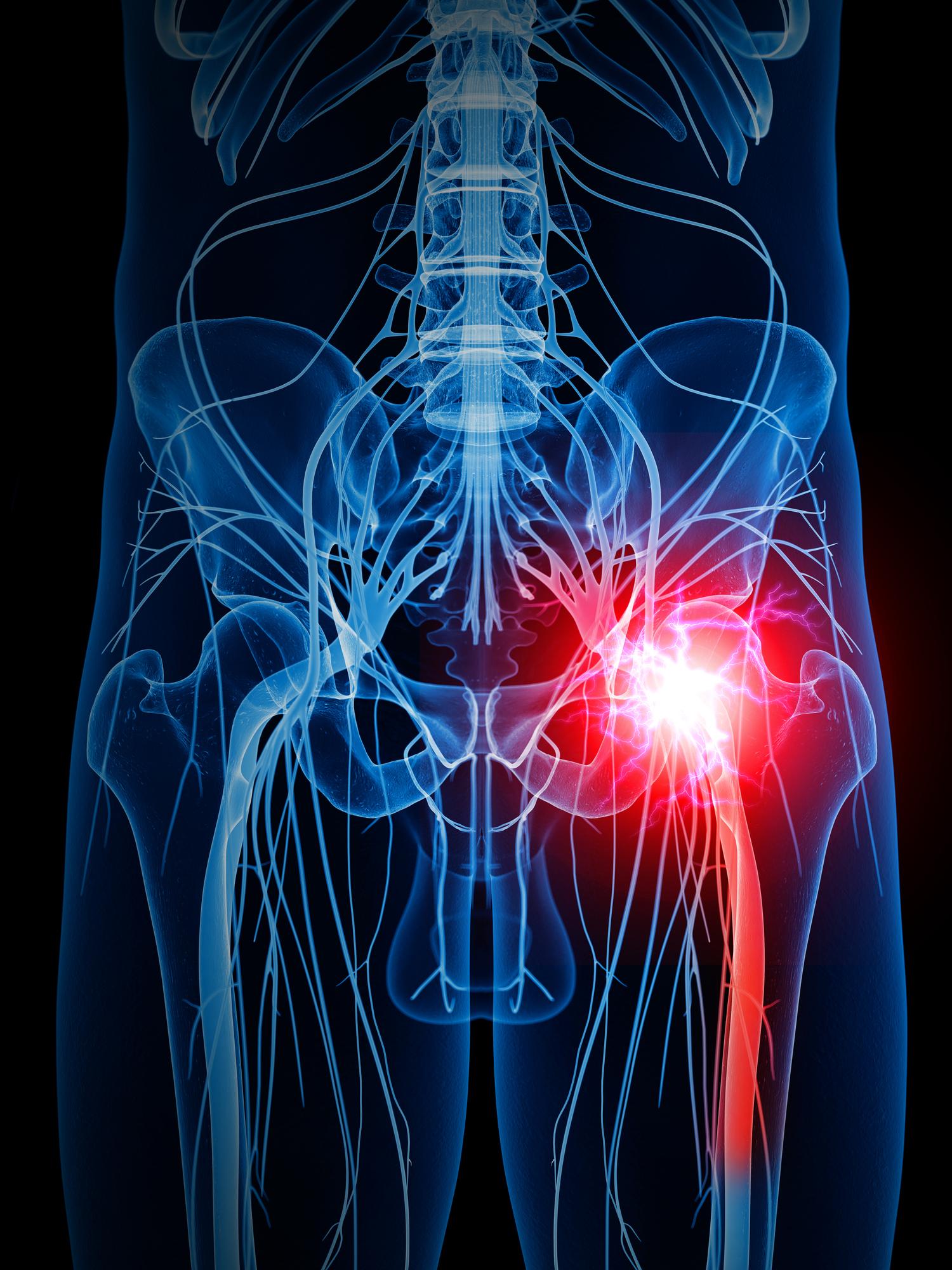 A Complete Overview Of Sciatica Nerve Pain Kamerlink