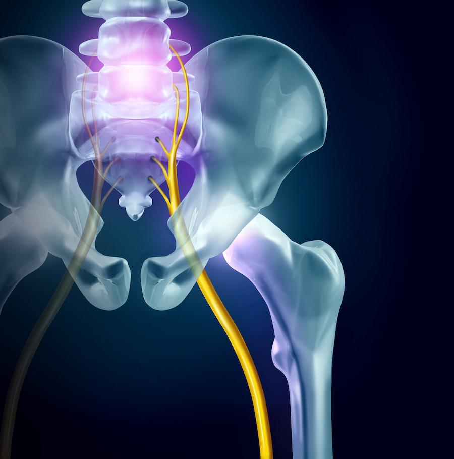 what-is-sciatica | Kamerlink Pain Institute