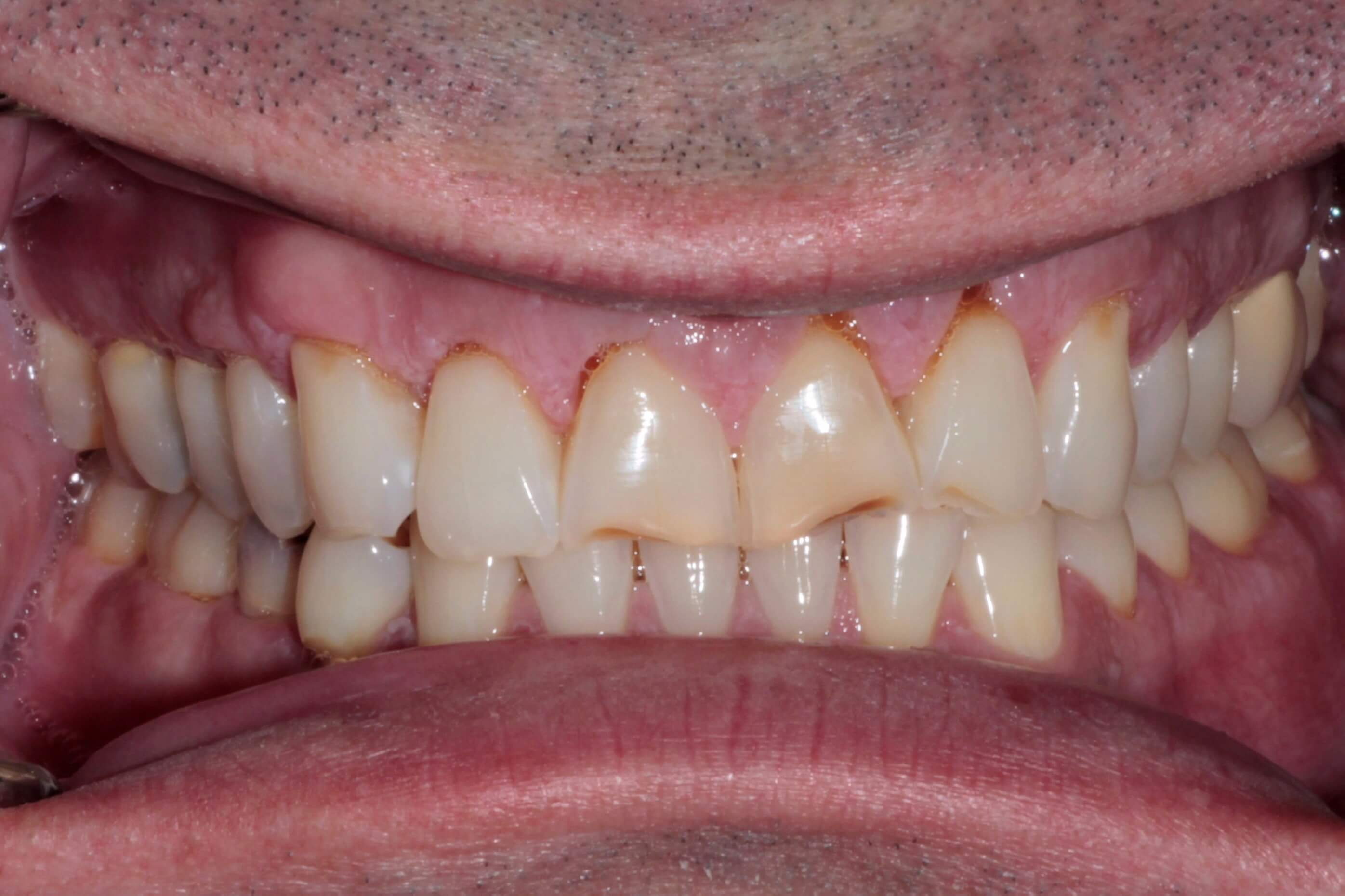 Before Veneers and Bonding