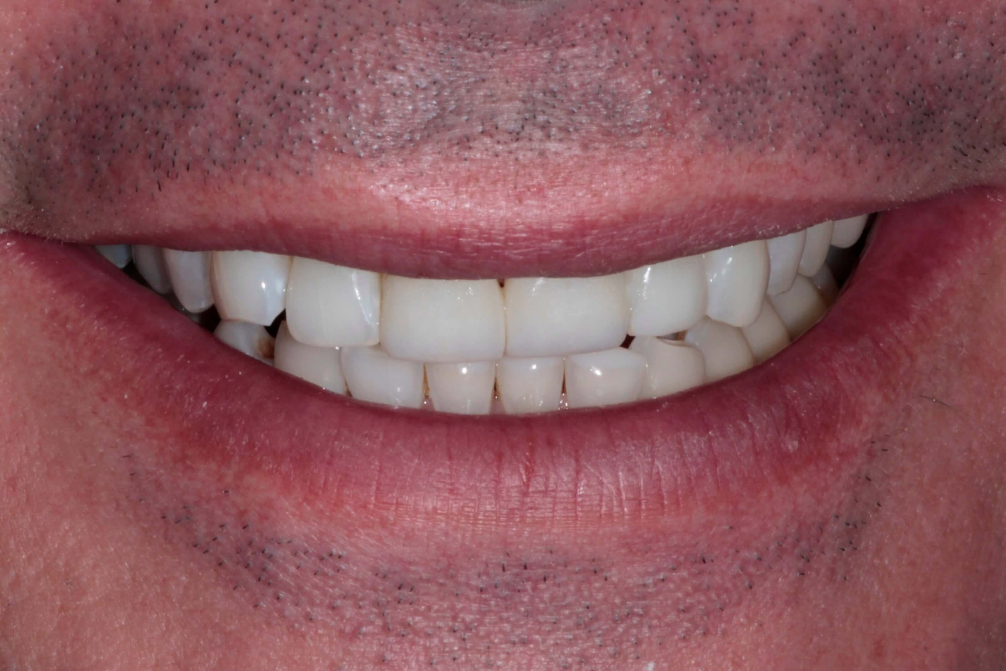 After Veneers and Bonding