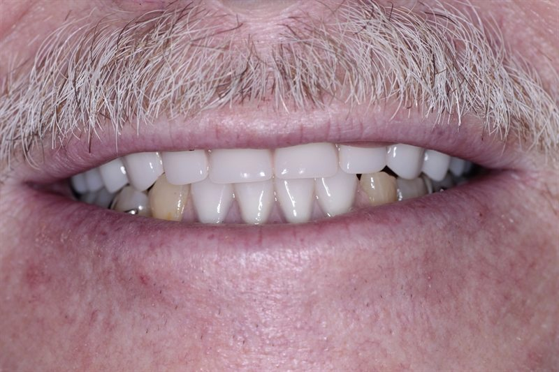 Upper denture and lower partial denture