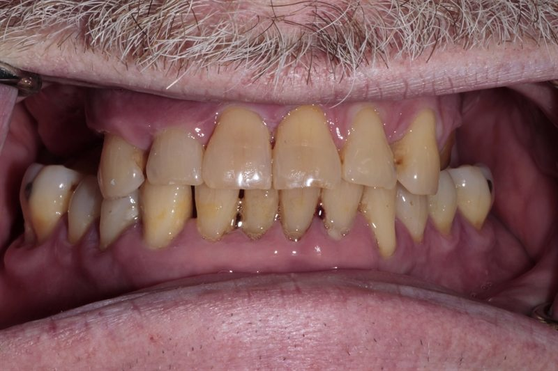 Failing upper teeth