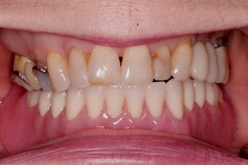 New lower implant denture