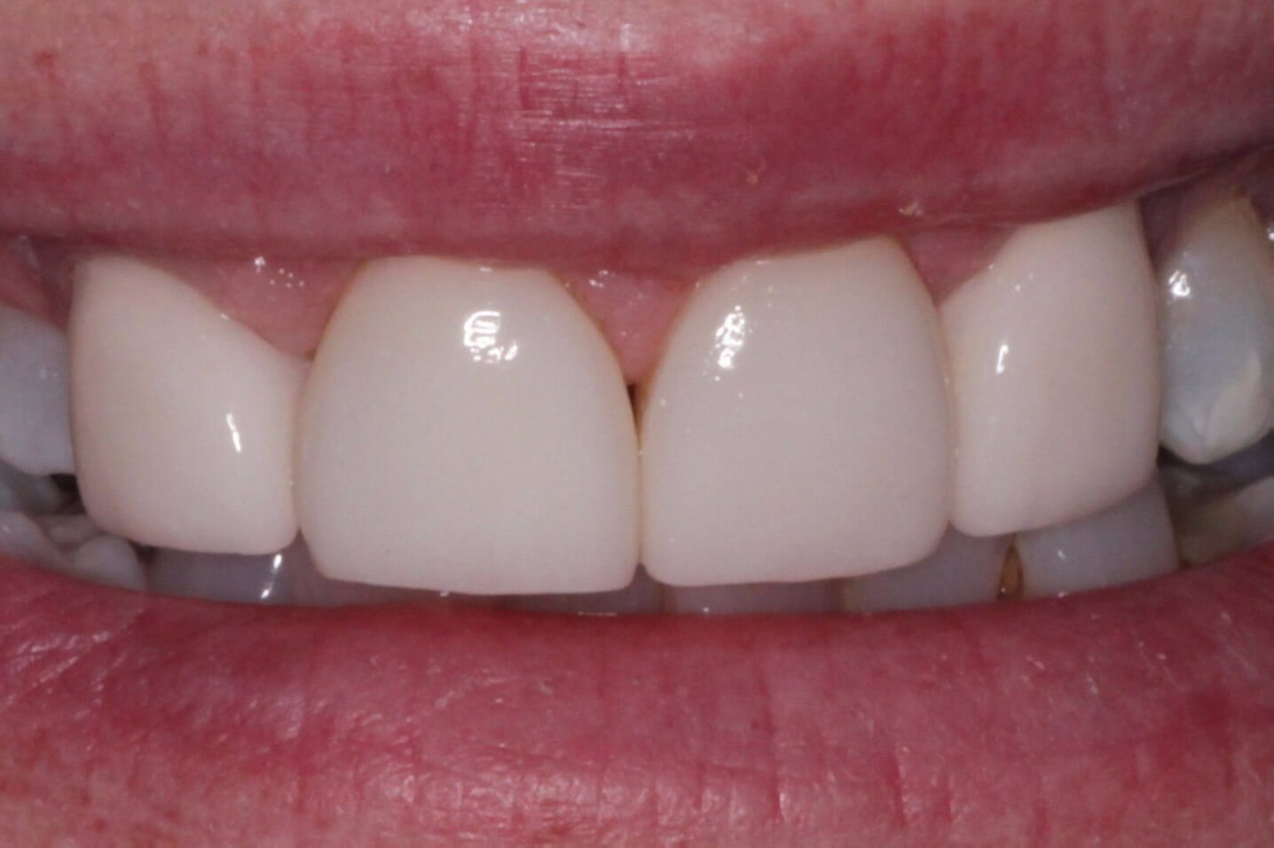 Porcelain-crowns-and-veneers-F2