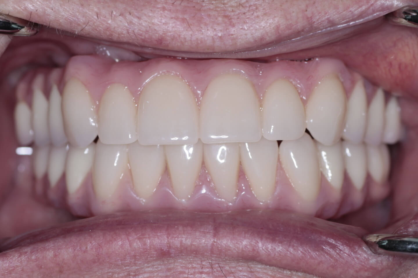 Upper and lower implant bridges (All-on-4)