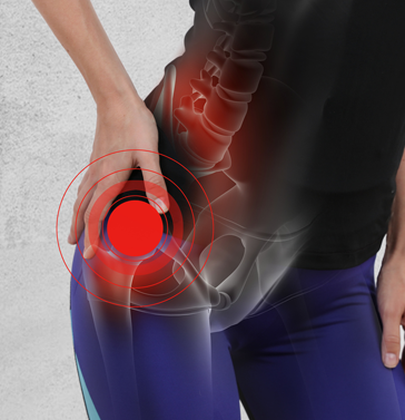 Hip Pain - hip Injury Care Sarasota, FL - Advanced Sports Medicine Center - hip surgery - hip arthritis treatment - hip surgeon near me - orthopedic surgeon near me