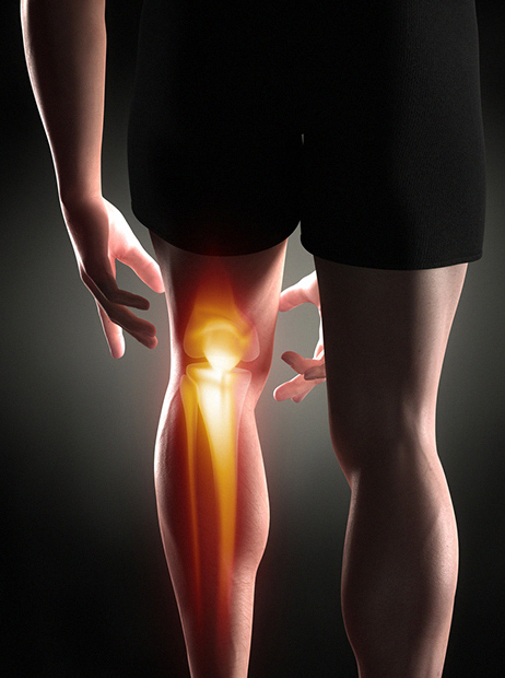 PCL tear - ACL Tear Treatment - Orthopaedic Surgical Consultants - ACL injury