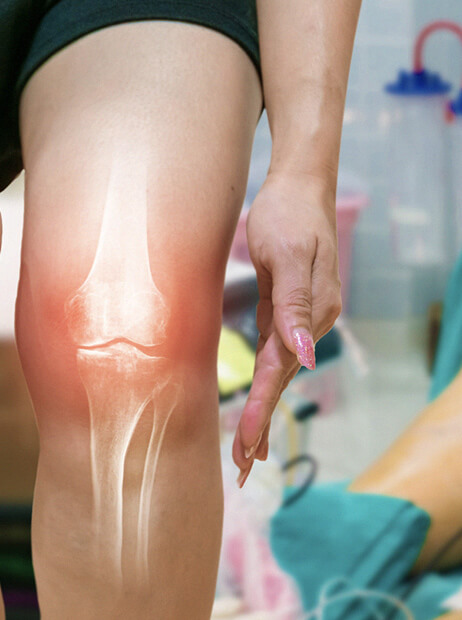 Arthroscopic Knee Surgery - knee arthroscopy nnear me - knee pain - knee surgery near me - knee surgeon - acl injury - torn meniscus - orthopedic surgeons Crown Point, IN - Orthopaedic Surgical Consultants