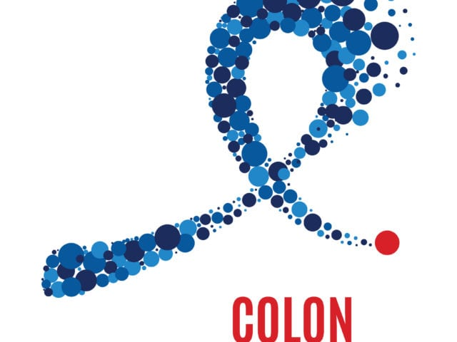Can You Prevent Colon Cancer?