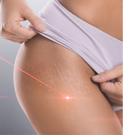 Elite SkinMD - Laser and Light Therapy - Laser skin resurfacing Warren NJ - intense pulsed light Warren NJ - laser hair removal Warren NJ  - Acne Laser Treatment Warren NJ  - Photodynamic therapy Warren NJ  - IPL Warren NJ
