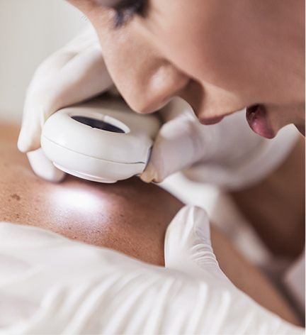 Elite SkinMD - Skin Cancer Diagnosis - Skin Cancer Treatment near me - Mohs Surgeon Warren, NJ - Skin Cancer Treatment Warren, NJ - Mohs micrographic surgery - Mohs Surgeon near me -  basal cell carcinoma - squamous cell carcinoma