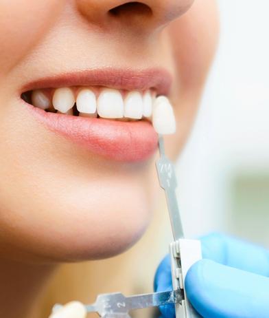 Dental Implants Doral, Florida - Dr. Belkis C. Del Puerto - Smiles at Doral - Dental Implants near me