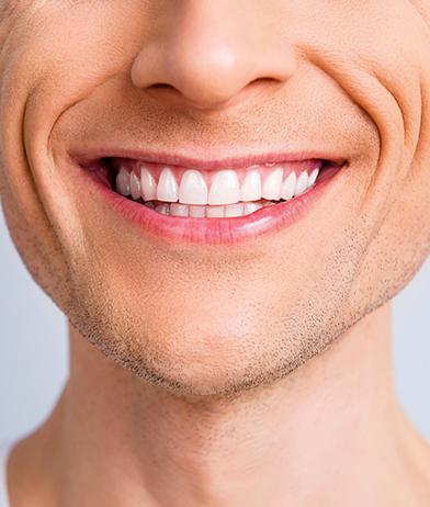 Restorative Dentistry Doral, FL - Dr. Belkis C. Del Puerto - Smiles at Doral - dentist near me