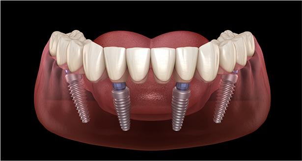 Dental Implants doral fl - Dental Implants near me - Dr. Del Puerto - Smiles at Doral - dentist near me - dentist Doral FL - cosmetic dentistry - restorative dentistry - cosmetic dentist near me - dentist office near me