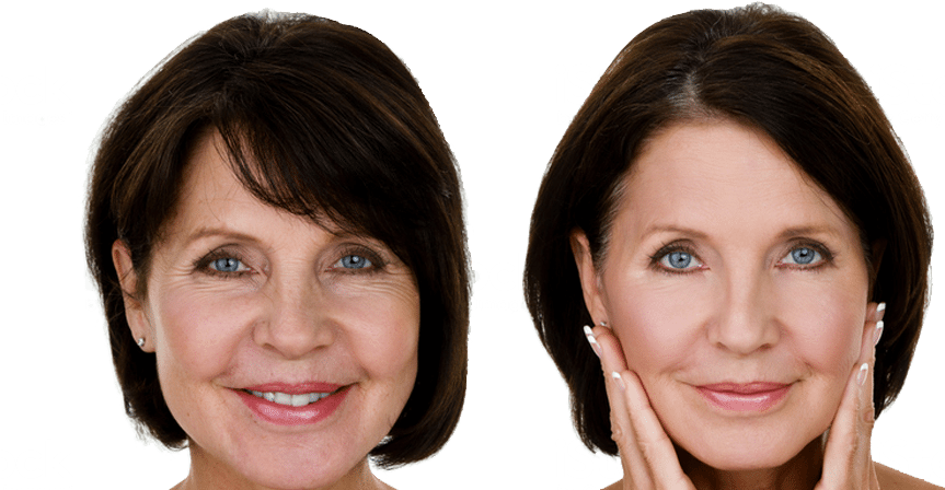 Before & After Gallery - The Plastic Surgery Group, PC - Dr. Mager