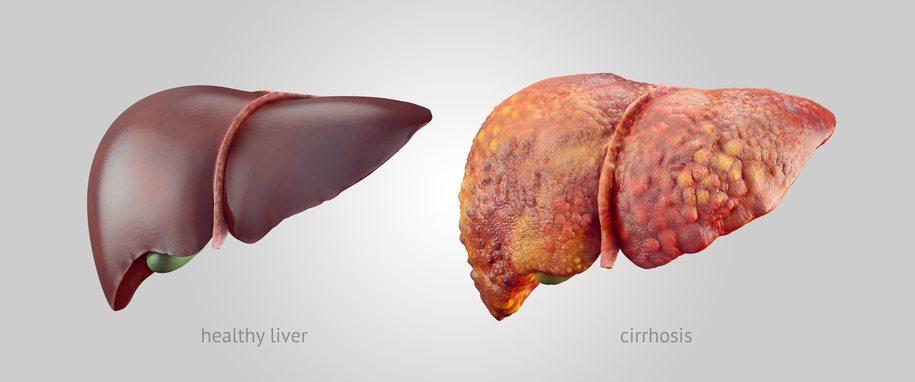 Can Medication Cause Liver Damage Austin Gastroenterology