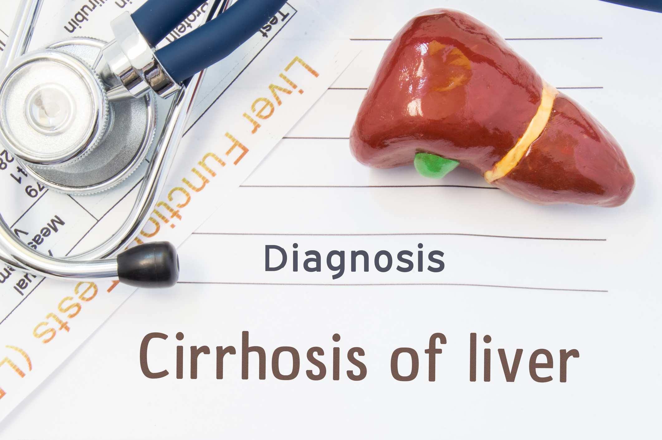 Cirrhosis Of The Liver Diagnosis Anatomical 3d Model Of Human Liver