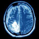 Brain Tumor - Front Range Spine & Neurosurgery
