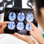 neurological disorders