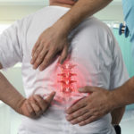 Common Spinal Conditions