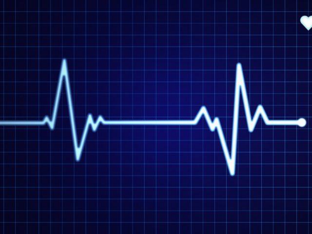 Echocardiograms