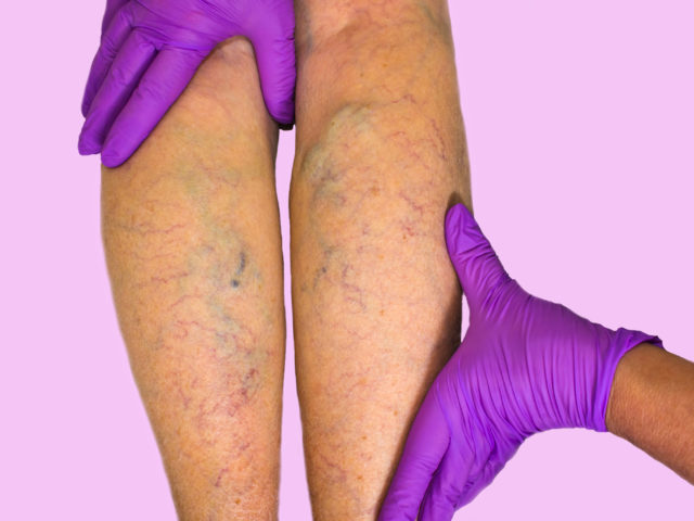 Venous Insufficiency - Internal Medicine Associates & Rehabilitation