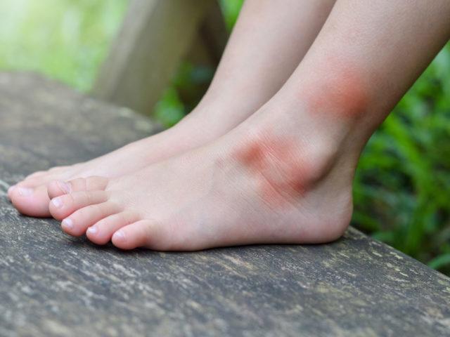 skin allergies in kids