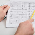 Doctor analyzes echocardiogram results of a patient's heart