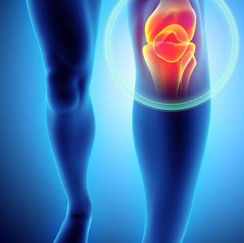 Am I a candidate for partial knee replacement?