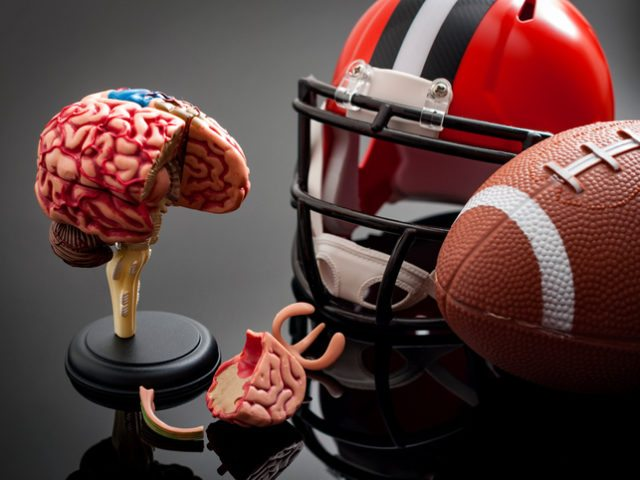 The Long Term Effects of Concussions On the Brain