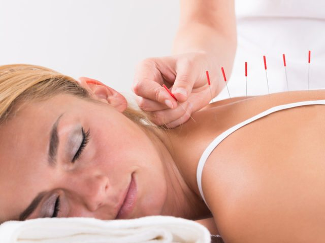 What is Acupuncture and How Does it Work with Chiropractic Care for Back Pain?