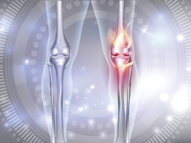 Is Arthroscopic Surgery an Option for Cartilage Tears?