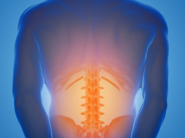 The Complete Guide to Spinal Stenosis