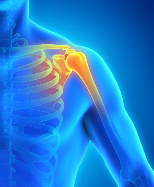 The Benefits of Arthroscopic Rotator Cuff Repair