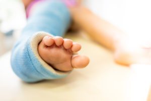 fractures in kids and adults