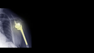 Film X-ray of reverse shoulder arthroplasty prosthesis