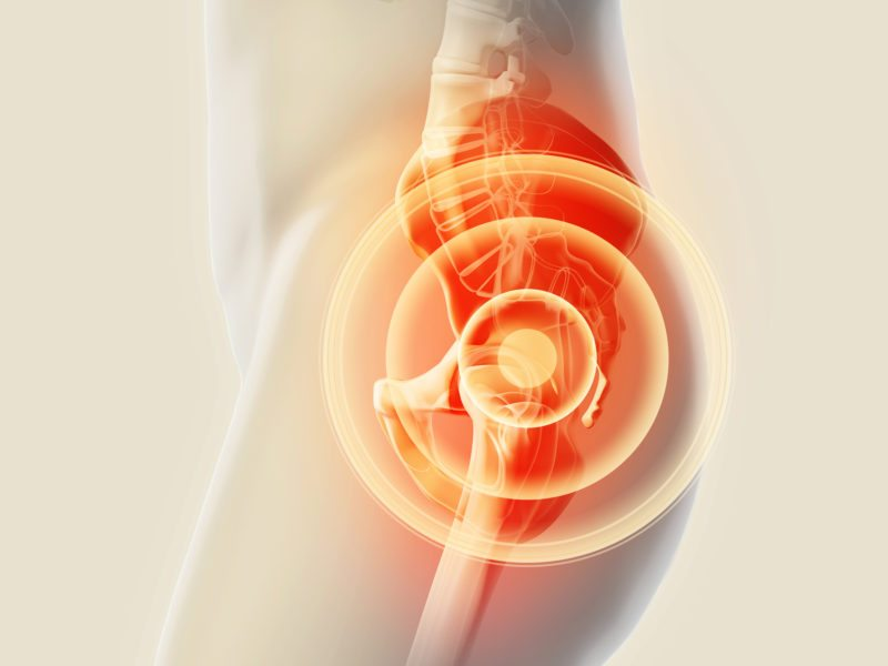 Can Stem Cell Therapy Help Hip Pain?